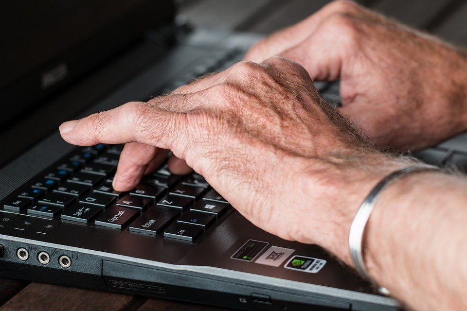 Aging hands that have no arthritis.